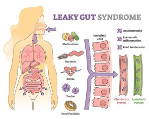 Leaky Gut Syndrome Causes Psoriasis to Get Worse